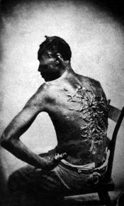 Photo documentary from the time of the American Civil War: Gordon, the Whipped Slave Shows His Scars (1863)